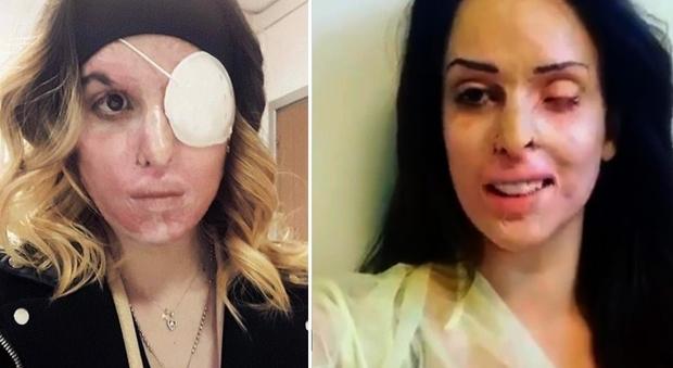 Gessica Notaro operata all'occhio sinistro: «Giorno fondamentale, svolta vicina»