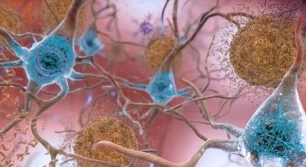 Alzheimer, una nuova cura da farmaco anti-Parkinson
