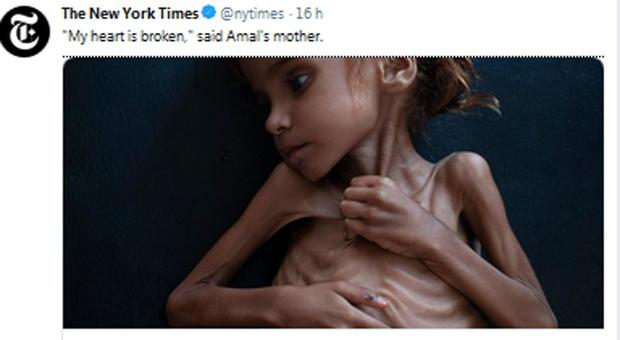 È morta Amal: la sua foto aveva fatto il giro del mondo