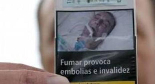 Il giallo dell'uomo intubato sui pacchetti di sigarette, in tre rivendicano la stessa foto