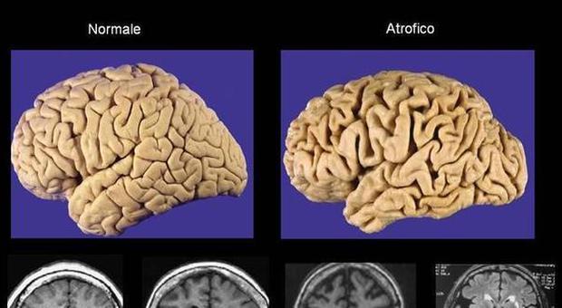 Cervello dei giovani, alcol e droga danneggiano come l'Alzheimer