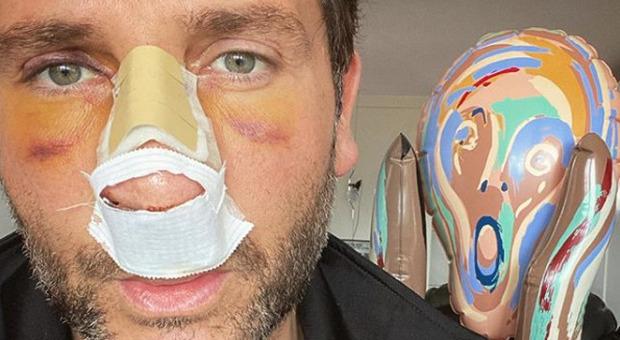 Alessio Viola, brutto incidente in moto: «Ho preso una
