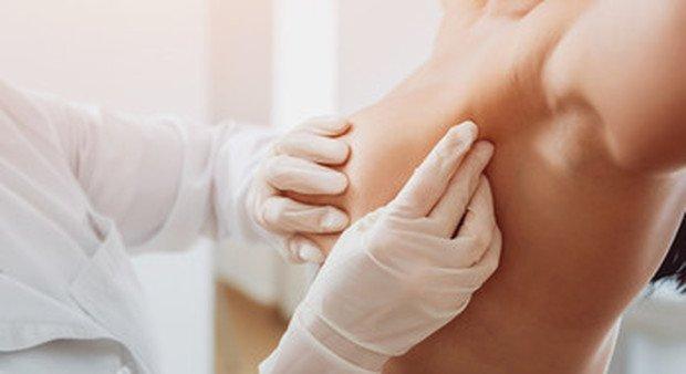 Nuove speranze contro il tumore al seno, un algoritmo indica la cura su misura