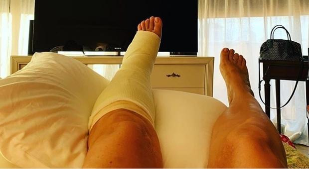 Mara Venier, frattura al piede sinistro per la conduttrice