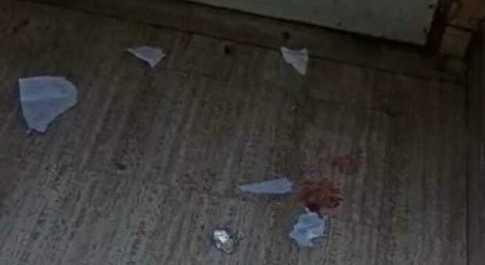 Sangue e fazzoletti lasciati a terra dopo la dose