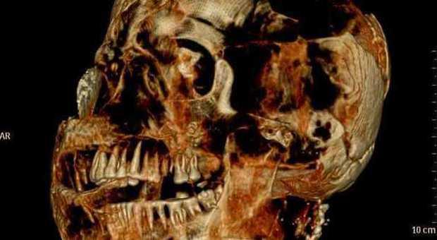 Pompei, Tac su trenta calchi delle vittime dell'eruzione: i denti sono perfetti