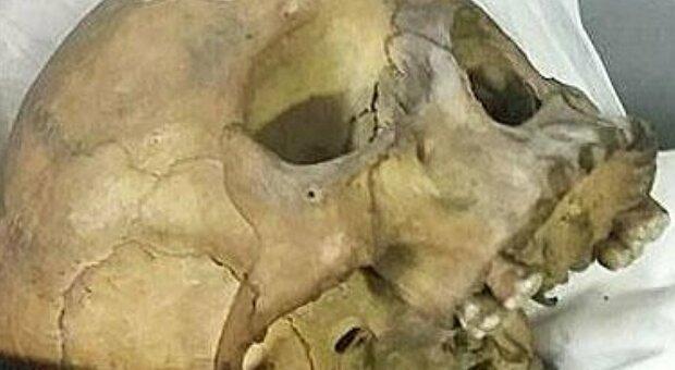 Traffico di teschi e ossa umane, un collezionista è aquilano