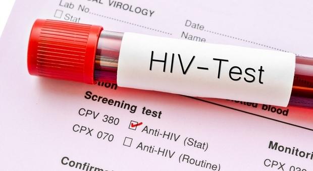 AIDS sito di aggancio