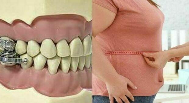 Bulloni nella bocca per non mangiare, progettato l'apparecchio estremo per combattere l'obesità
