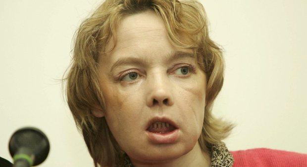 Morta Isabelle, prima donna al mondo a sottoporsi al trapianto facciale: il rigetto dopo 11 anni