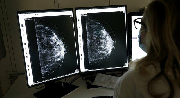 Tumore al seno, nuova terapia mirata può allungare la vita: lo dice una ricerca condotta per 4 anni