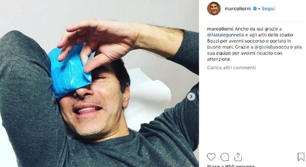 Marco Liorni, incidente e niente Sanremo: «Sono scivolato, mi hanno ricucito»