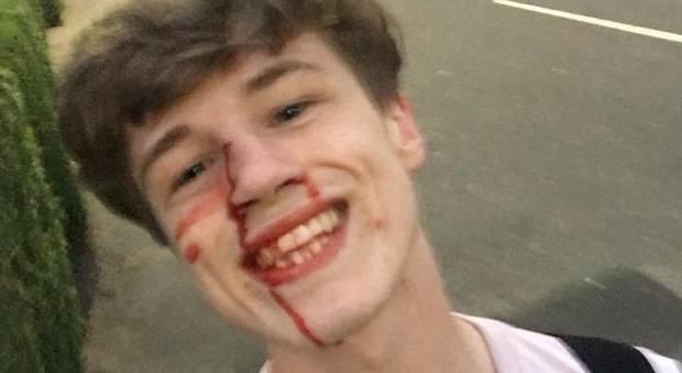 Massacrato di botte perché gay: posta la foto sorridente e scrive all'aggressore: «Ti auguro ogni bene»
