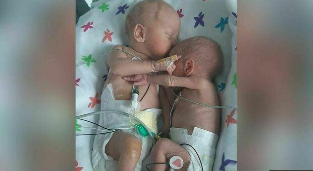 Nella foto i gemellini ricoverati al Liverpool Women's Hospital