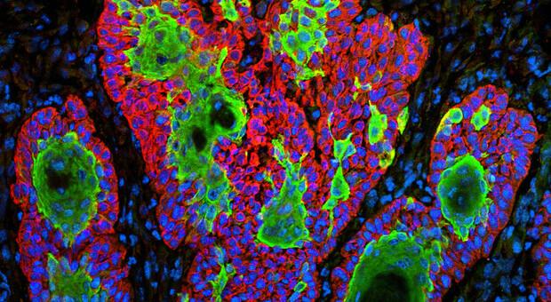Tumori, dalla genetica le nuove armi per combattere le recidive