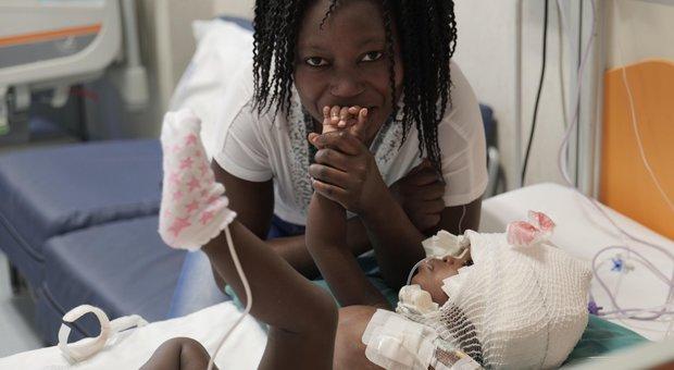 Roma, gemelline siamesi di 2 anni unite per la testa separate al Bambino Gesù: è la prima volta al mondo