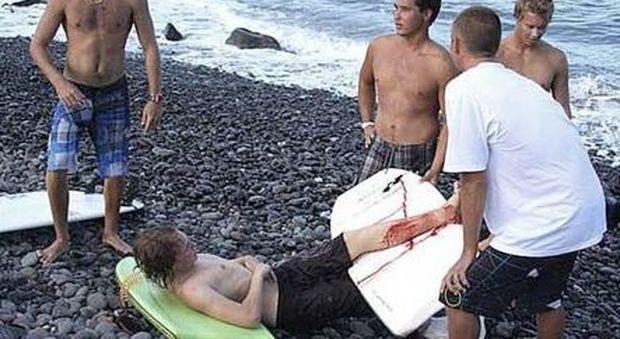 Surfista di 19 anni sopravvive all'attacco di uno squalo bianco: «L'ho preso a calci»