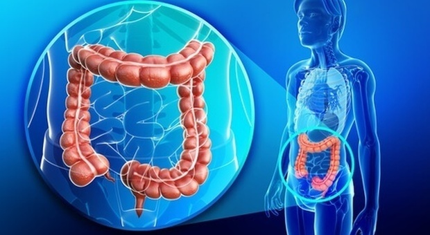 Morbo di Crohn, cos'è la malattia cronica di cui è affetto il figlio di Paolo Genovese