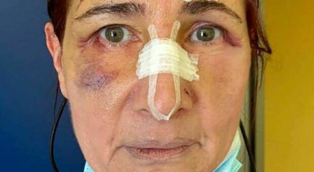 Chiede di indossare la mascherina, infermiera picchiata a Foggia