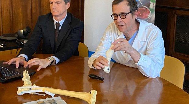 Caviglia ricostruita in 3D all'ospedale Rizzoli di Bologna: «Venti pazienti in lista per il trapianto»