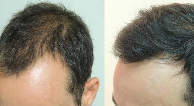 Immagini prima e dopo trattamento anti-infiammatorio