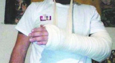 Alessio mostra il braccio fratturato
