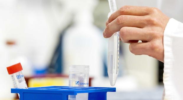 Covid-19: da Bei a CureVac prestito da 75 milioni per vaccino