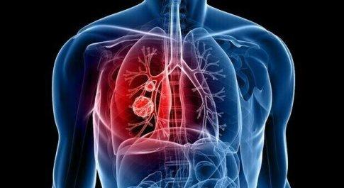 Tumore al polmone, lo screening riduce il tasso di mortalità del 35%