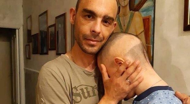 Tumore al cervello per la seconda volta, il dramma di Seby: raccolta fondi per le cure in Australia
