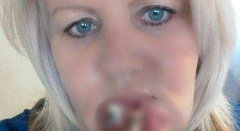 La curano per l'influenza, ma aveva un tumore alla bocca: dovrà ricostruire mascella e labbra