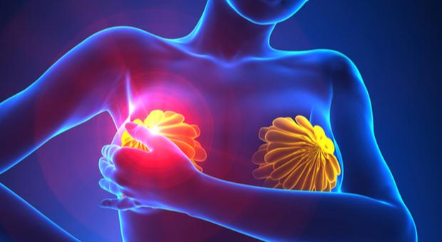 Cancro al seno, dopo le cure ormonali i rischi continuano per 10-20 anni