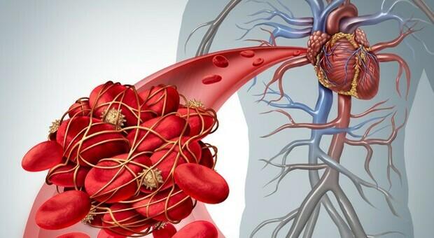 Astrazeneca, le cura contro le trombosi: un mix di farmaci scioglie i coaguli di sangue