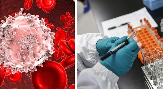 Leucemia, scoperta una nuova immunoterapia contro la malattia residua nascosta