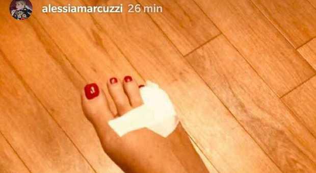 Alessia Marcuzzi incidente domestico: dito fratturato, appello a Savino