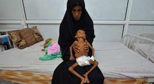 La guerra nello Yemen dell'Arabia Saudita finora è costata la vita a 85 mila bambini