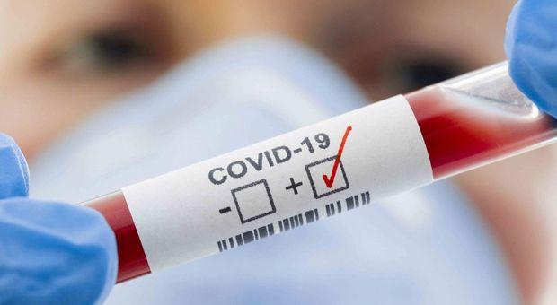 Test sierologici, campagna al via alla Sapienza, il rettore Gaudio: «Gratuiti per 4.500 dipendenti»
