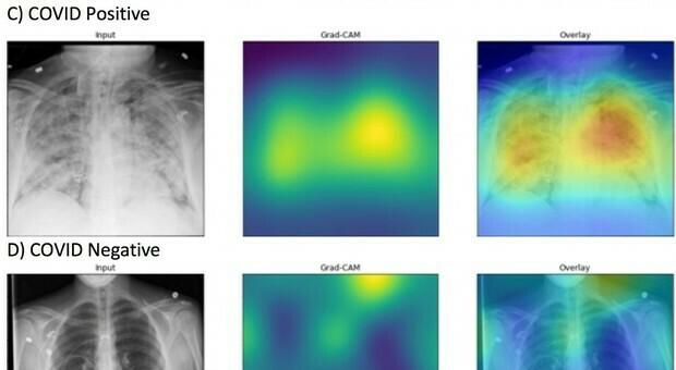 Covid, studio Molinette: ecografia al polmone scopre positività prima del tampone molecolare