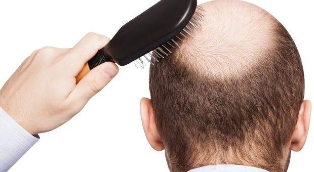 Alopecia, il 16 settembre Giornata nazionale: a Roma, Bologna e Cagliari ambulatori aperti