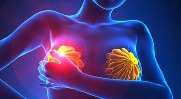 Tumore al seno avanzato, raggiunto il record di sopravvivenza grazie al Ribociclib