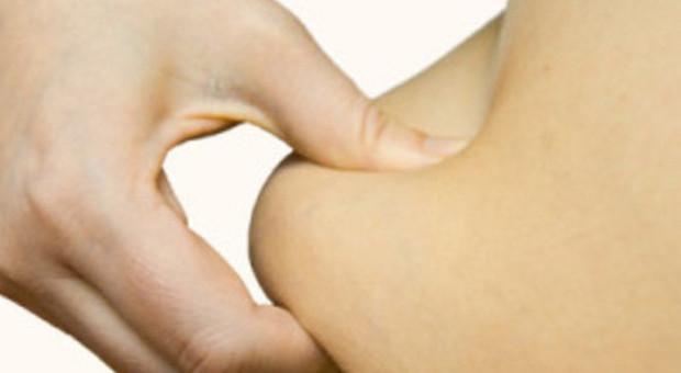 Maniglie dell'amore e pancetta scoperte le basi genetiche