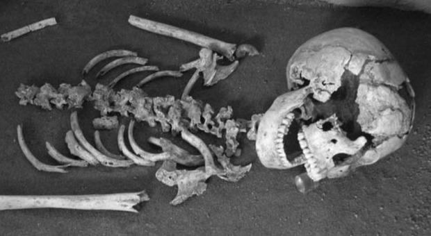 Celiachia già presente nei romani di 2000 anni fa: la scoperta grazie allo scheletro di una ragazza coperta di gioielli