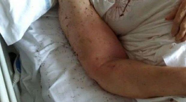 Salerno, cadavere di una donna ricoperta di insetti all'ospedale: lo choc della famiglia
