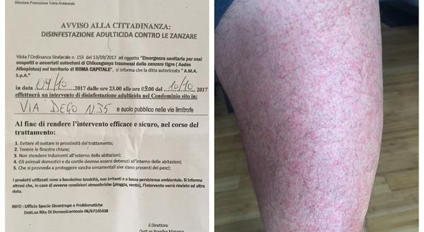 Chikungunya, altri due casi a Roma nord: «Io e mia moglie colpiti dal virus»