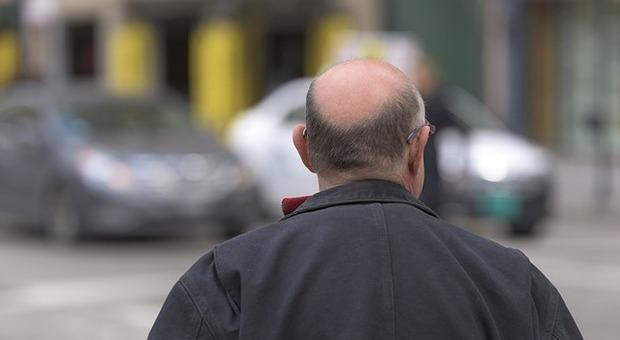 «Farmaco contro la caduta dei capelli mi ha reso impotente»: la denuncia di un 35enne a Milano