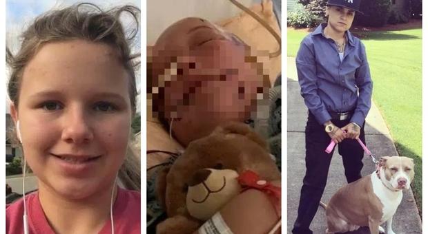 Ragazza azzannata alla testa da due pitbull: è gravissima, strappato il cuoio capelluto Arrestata la proprietaria dei cani ad Atlanta