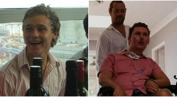 Giovane mangia lumaca per gioco e resta paralizzato: morto dopo 8 anni di sofferenze
