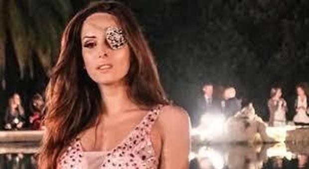 Sanremo, Gessica Notaro domani sul palco per parlare di violenza sulle donne