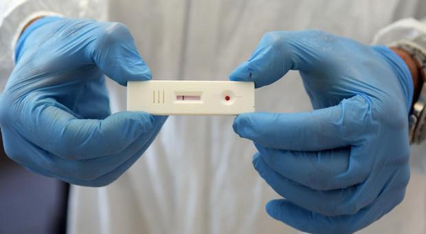 Covid, corsa ai test sierologici: prenotazioni fino a luglio