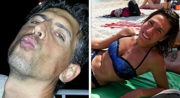 Incidente a Porto Recanati, morti marito e moglie: un arresto per omicidio stradale