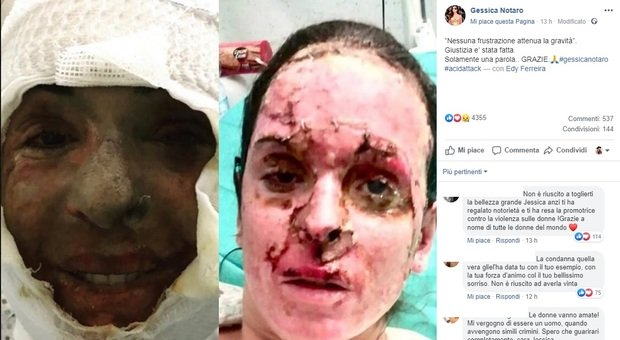 Gessica Notaro: «Giustizia è stata fatta». E pubblica le foto col volto sfigurato